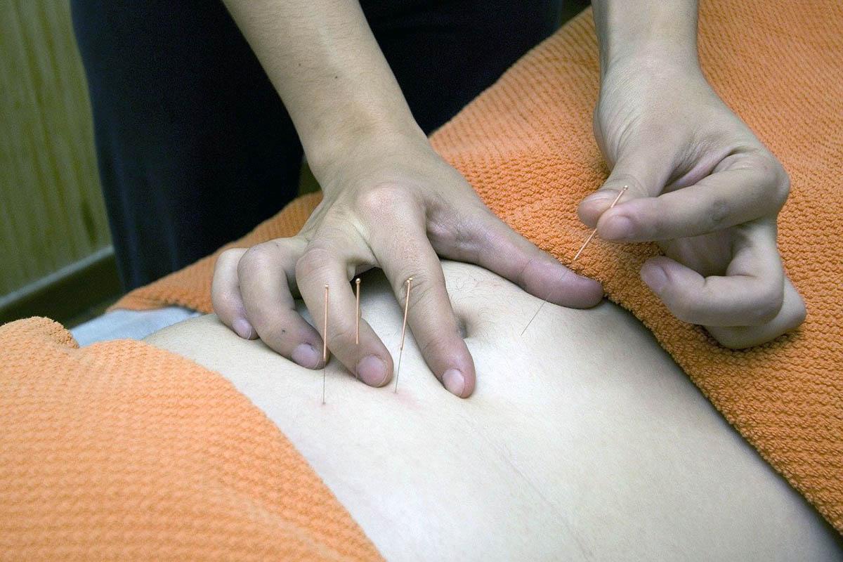 Acupuncture procedure