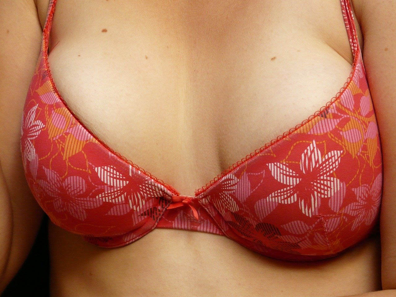 close up photo of breasts and bra after breast reduction