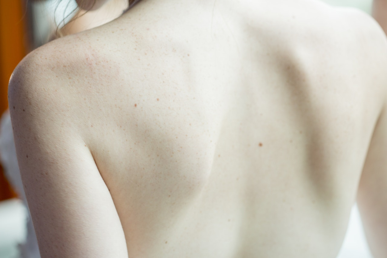 photo of a person's back acne