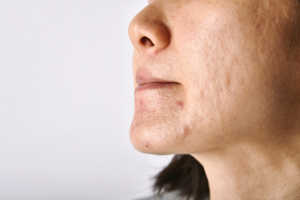acne skin problems laser treatment for face in Singapore