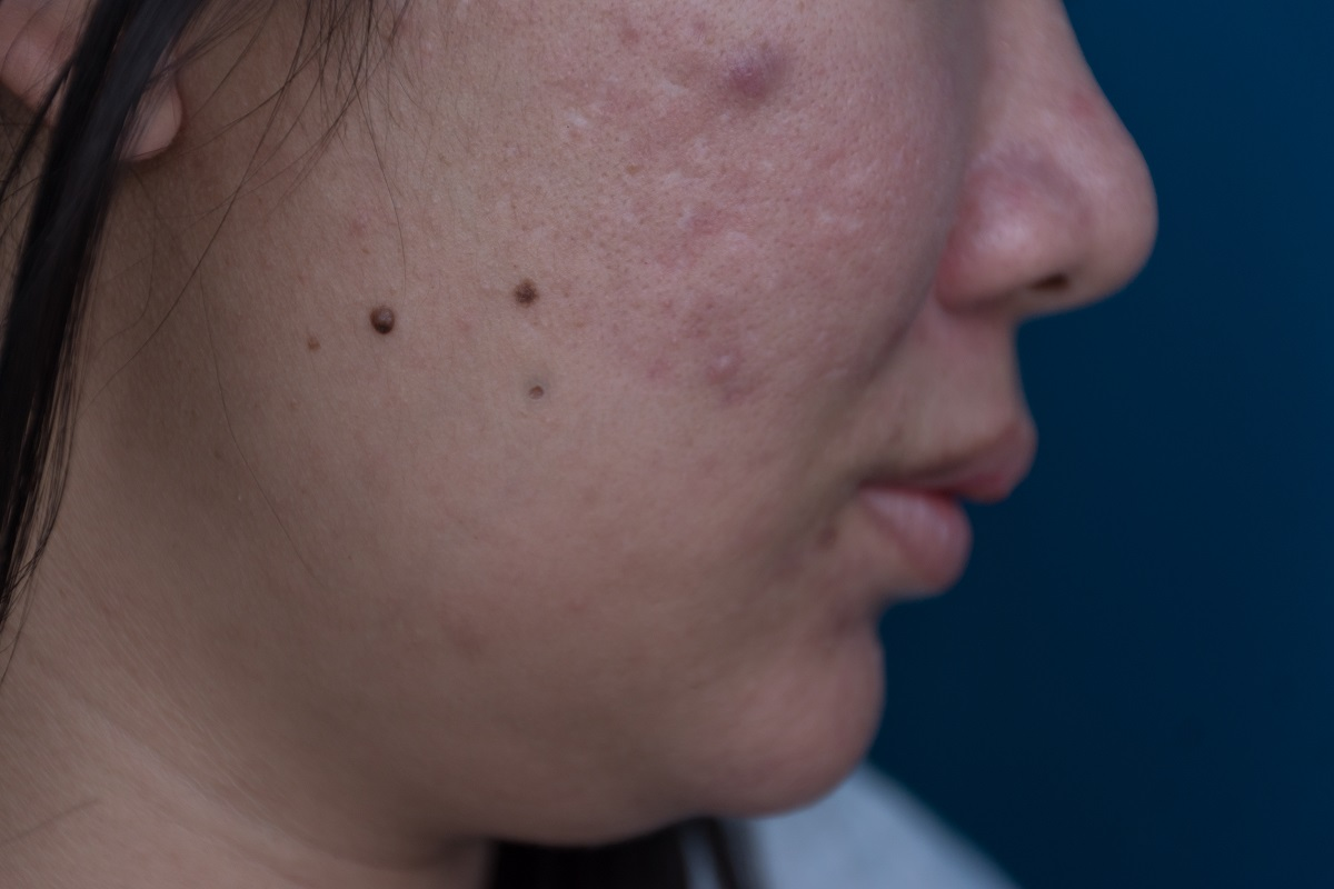 close up of a woman's cheek with pigmentation