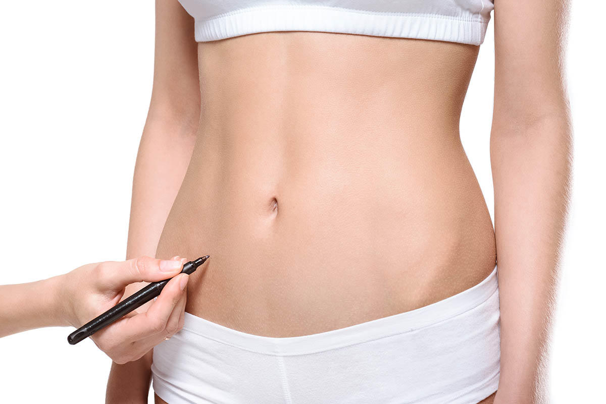plastic surgeon marking area on stomach of patient for lipectomy procedure